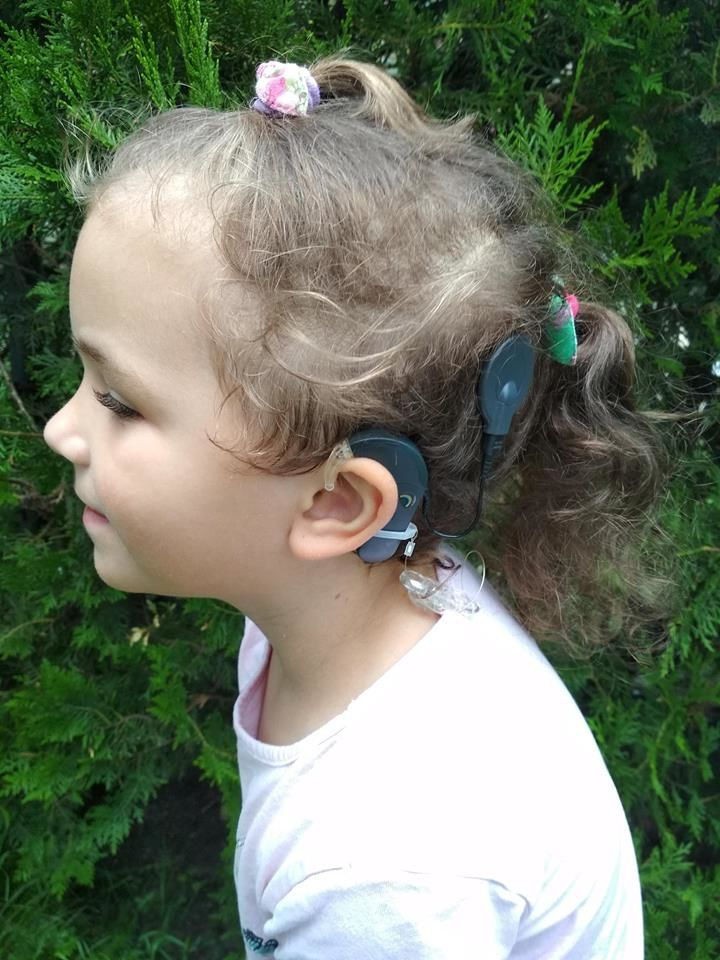 Egy CI műtétnek köszönheti a kislányom, hogy hallja, amit mondok NLCAFÉ.jpg